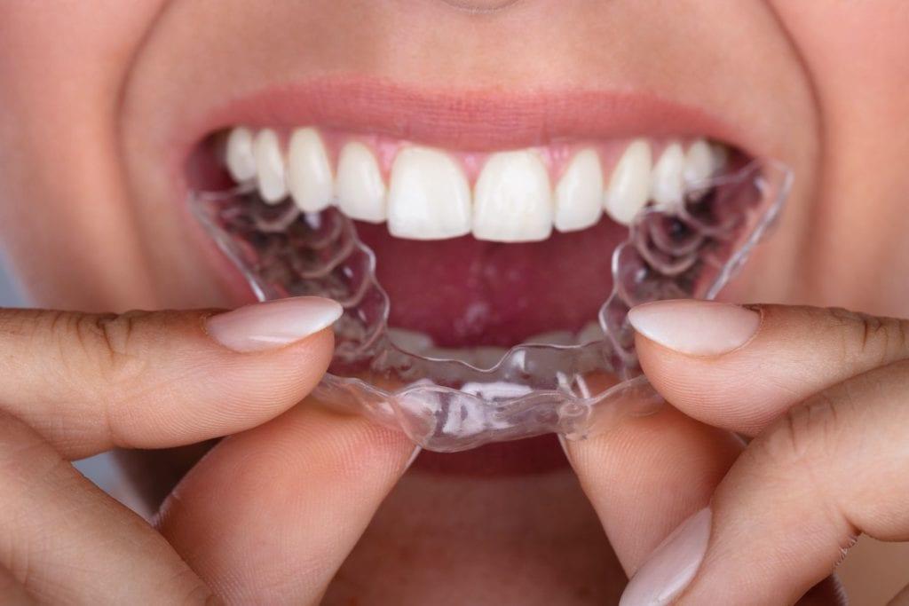 dentist orem